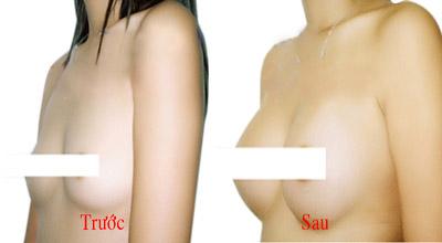 Gel thoa nở ngực Qiansoto, gel qiansoto, giúp ngực săn chắc,giúp ngực to, giúp ngực săn chắc sau sinh, giúp ngực căng tròn, kem massage ngực, kem nở ngực, thuốc nỡ ngực
